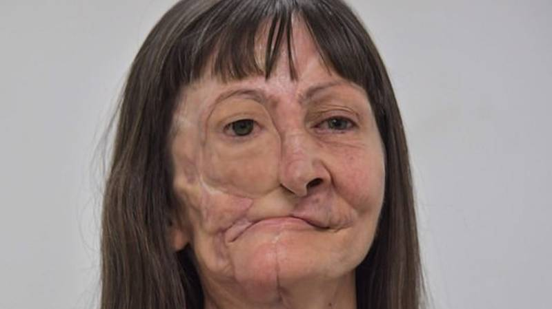 Skin Cancer Sufferer's Life Changed After 'Missing Piece' Of Her Face Replaced With Prosphetic