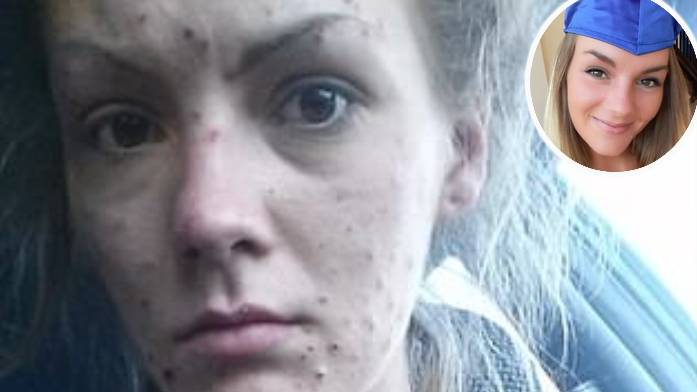 Recovering Meth Addict Shares Incredible Before And After Photos