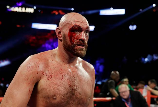 Fury said he had more than 40 stitches and a few beers after the fight. Credit: PA