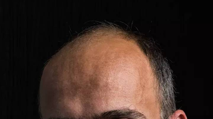 Bald Men Could Be At Greater Risk Of More Serious Covid Symptoms